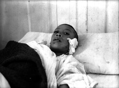 Hombre herido en la cama de un hospital
