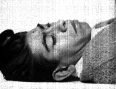 Hombre probablemente herido, recostado en la cama de un hospital