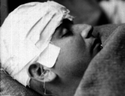 Hombre herido de la cabeza durmiendo en la cama de un hospital