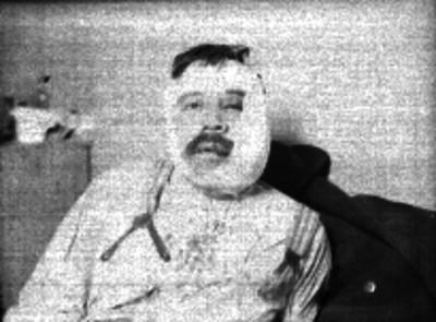 Hombre herido del rostro, encamado en un hospital