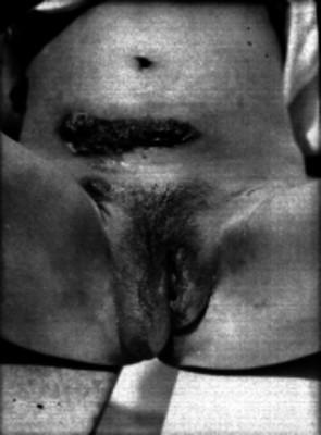 Mujer con enfermedad sifilítica