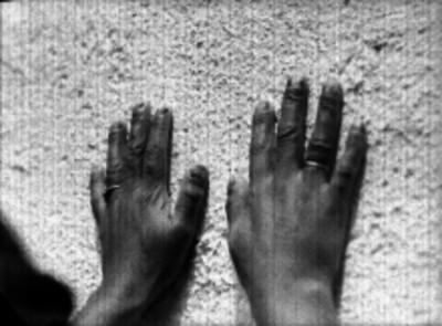 Manos de una mujer sifilítica