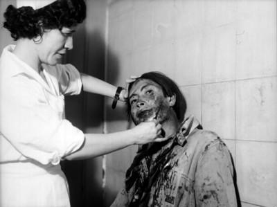 Enfermera cura a herido