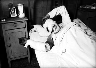 Herido con vendajes en cara y rostro acostado en una cama de hospital