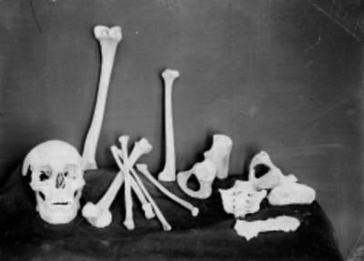 Cráneo y huesos humanos, hallazgo