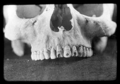 Maxilar superior con perforaciones dentarias, reprografía