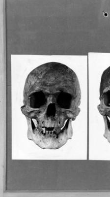 Cráneo humano, vista frontal