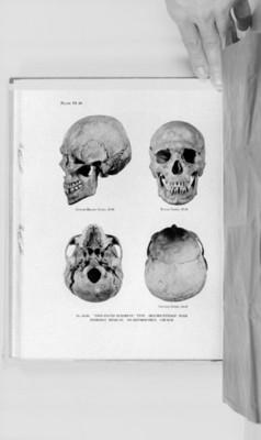 Cráneo humanos sin deformación, reprografía