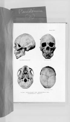 Ilustración cráneo femenino en cuatro posiciones, reprografía