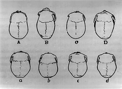 Tipología de cráneos, vista superior