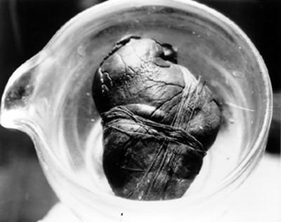 Corazón de Maximiliano en un recipiente