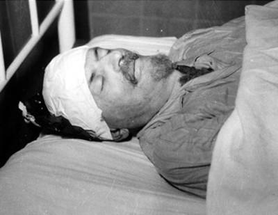 Cadáver de Léon Trosky en el hospital