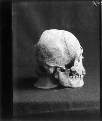Cráneo con perforación circular en el entrecejo, vista de perfil