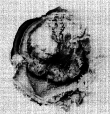 Corte transversal de un hueso