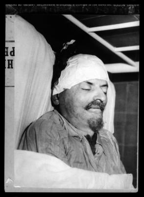 Cadaver de León Trotsky