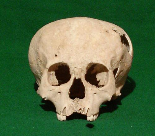 Cráneo