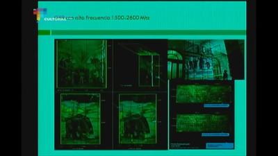 Mesa 6- Imagenología