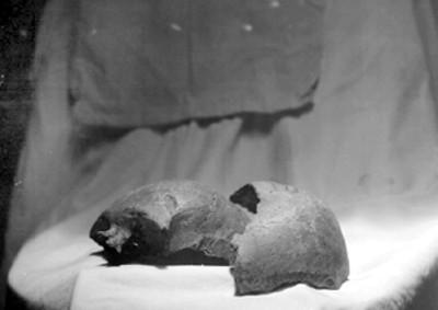 Fragmento de un Cráneo
