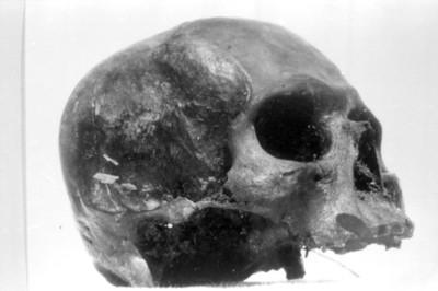 Fragmento de un cráneo, reprografía